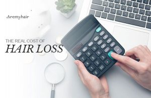 The Real Cost of Hair Loss - iAremyhair Blog