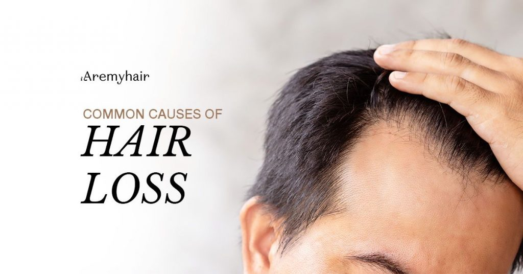 common-causes-of-hair-loss-blog-image-aremyhair